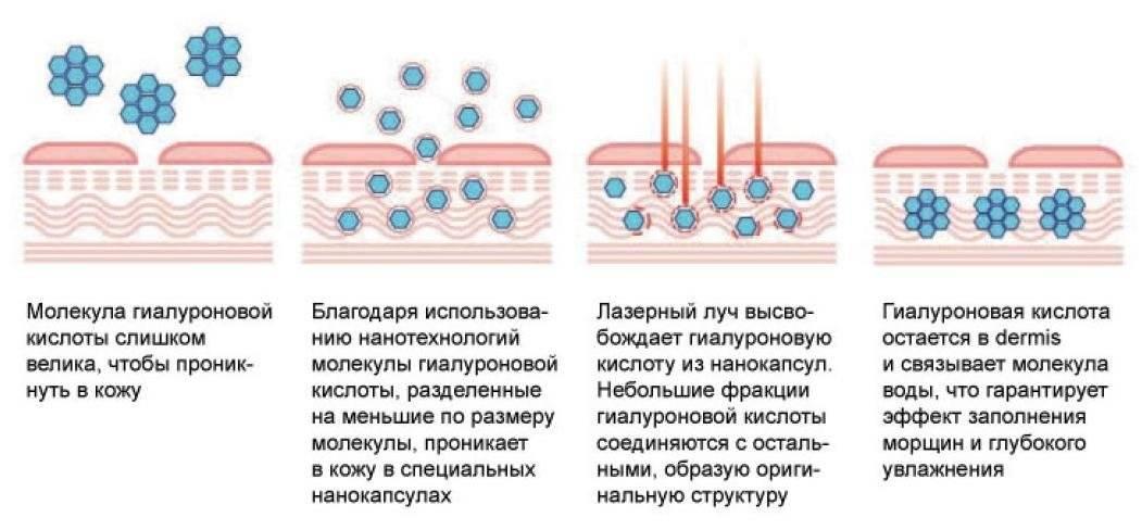 Коллаген и гиалуроновая кислота – для молодости кожи помогут всегда!