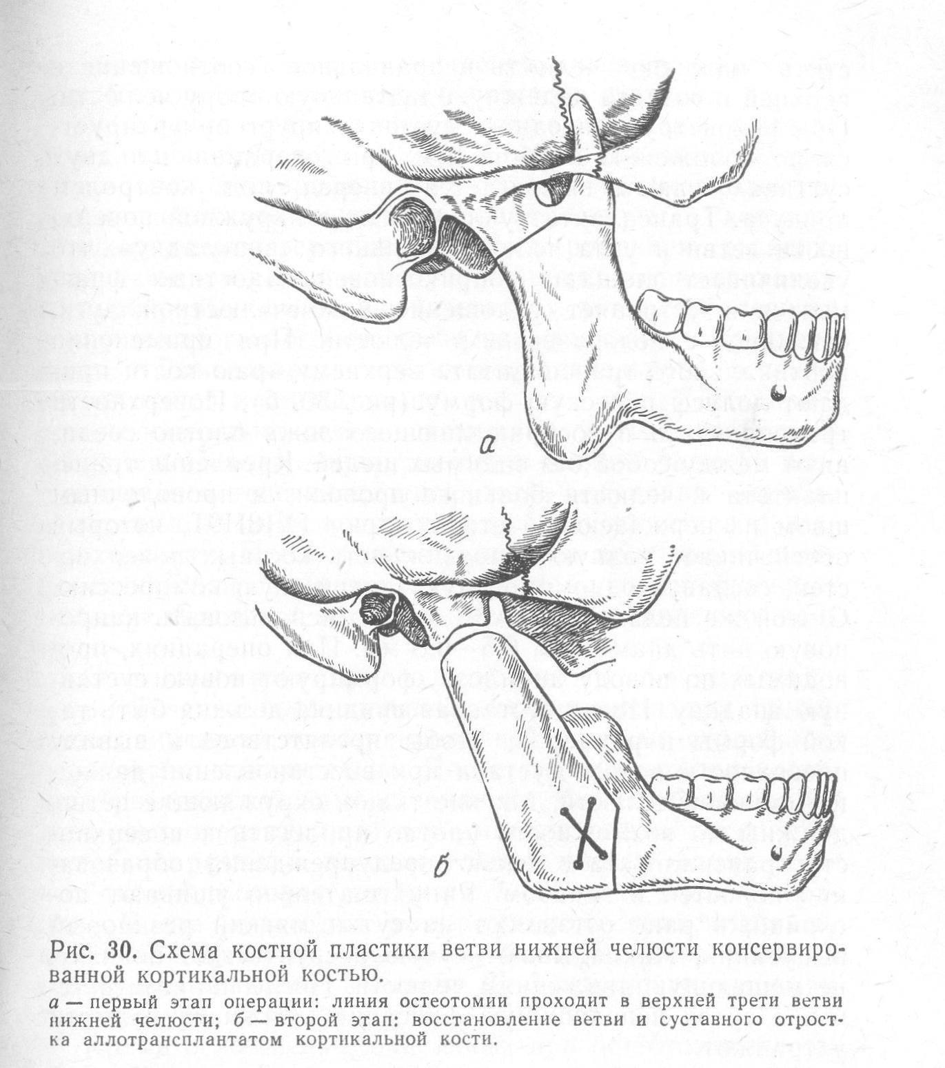 Как делают септопластику носа: подготовка и проведение операции