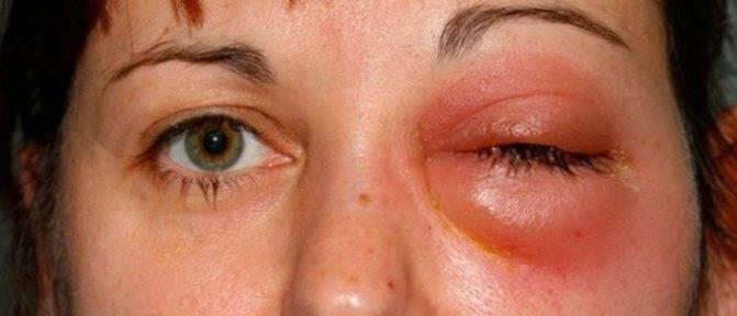 Гнойный абсцесс: признаки, фото и лечение