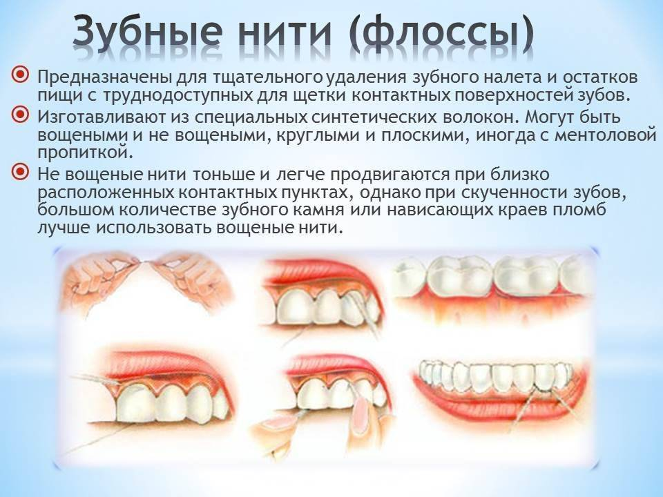 Профилактика кариеса зубов: как предотвратить заболевание