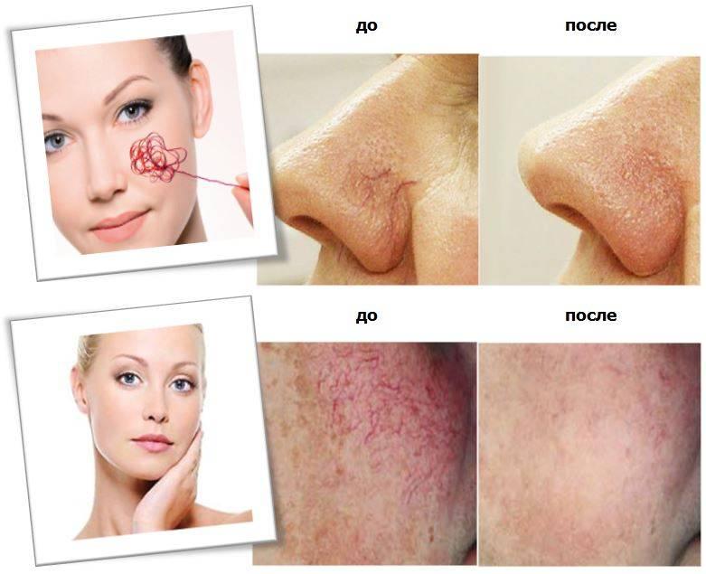 Лечение и профилактика купероза в кабинете косметолога