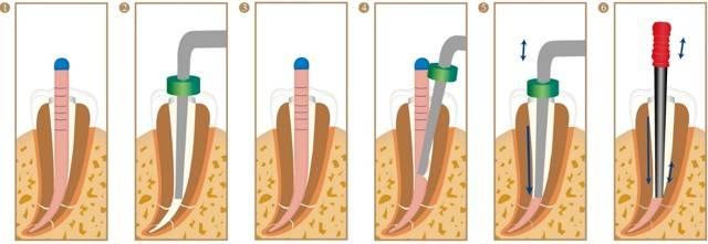 Современные методы обтурации корневых каналов