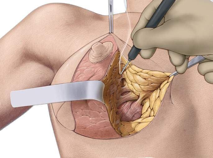 Подтяжка груди с эндопротезированием что это