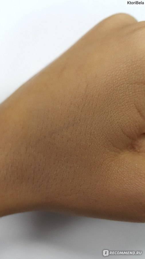Матирующие средства для жирной кожи