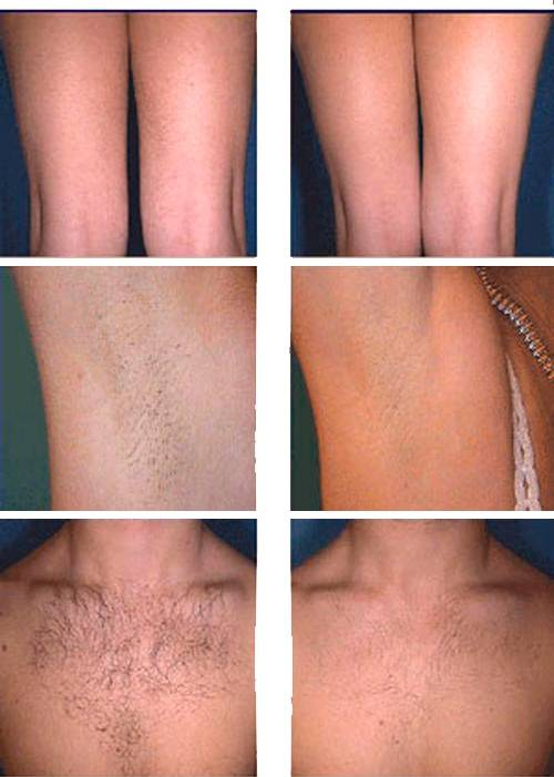 Фотоэпиляция лица: подготовка к процедуре, особенности и противопоказания