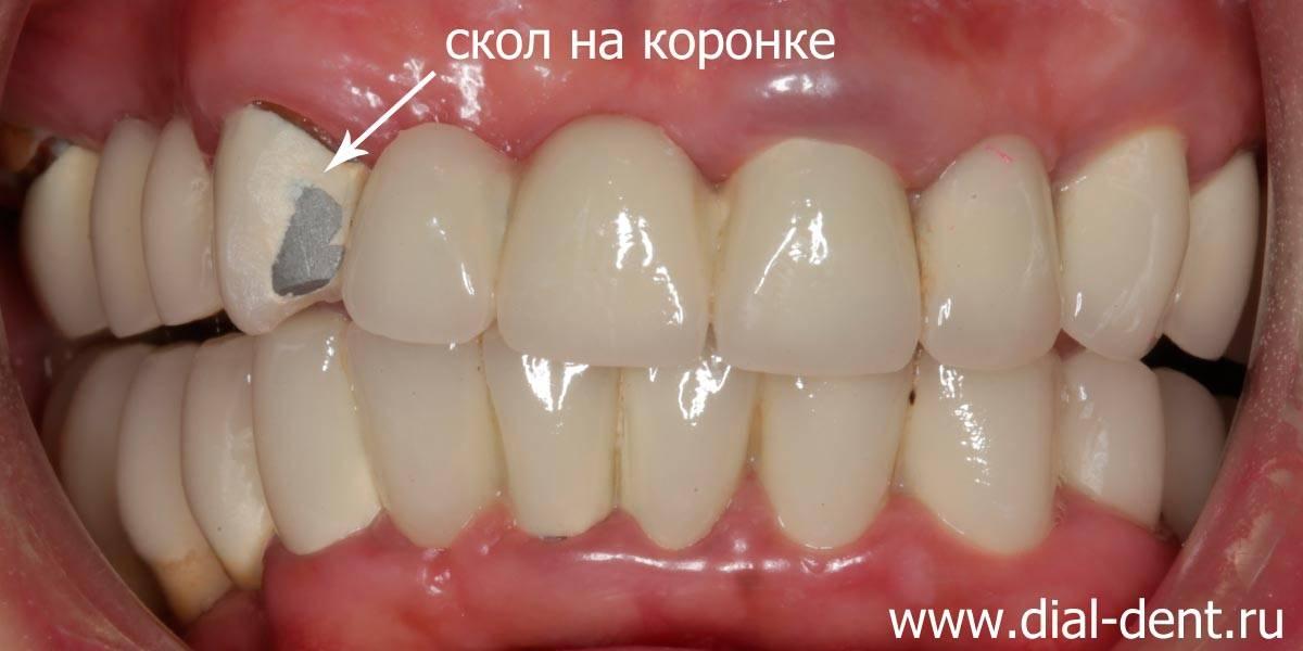 Узнаем, что делать, если откололся кусочек зуба