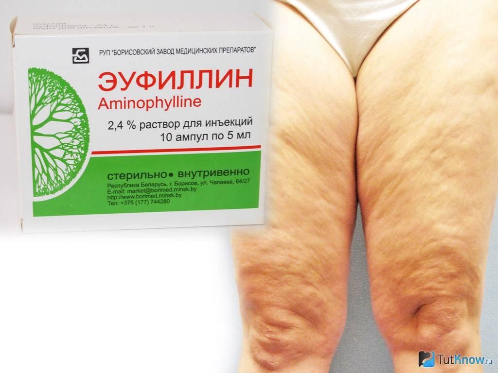 Аптечные средства от целлюлита
