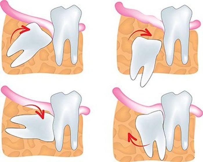 Боль после удаления нерва, зуба: причины, лечение. боль после удаления зуба мудрости сколько длится? боль в ухе, щеке, голове после удаления зуба