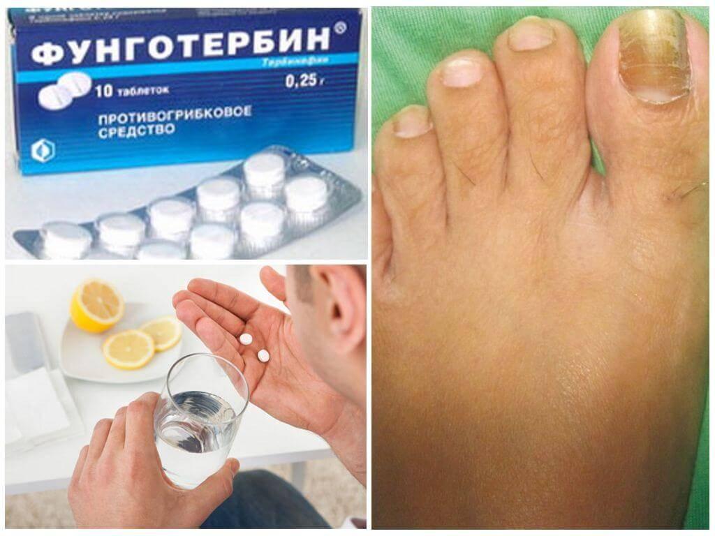 Можно ли вылечить грибок ногтей?