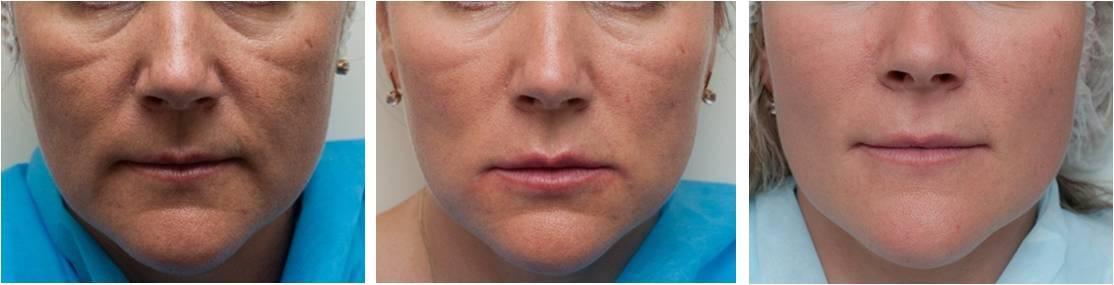 Заполнение носослезной борозды филлерами, гиалуроновой кислотой, фото до и после инъекций. цена, отзывы