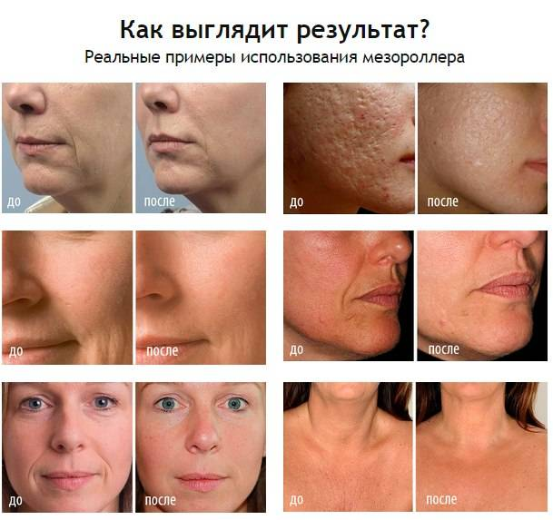 Фракционная мезотерапия кожи лица