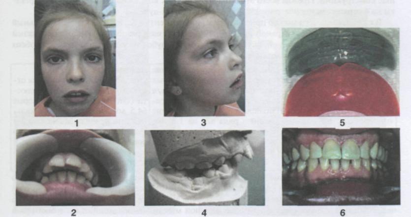 Виды окклюзии зубов и эффективные способы лечения патологии
