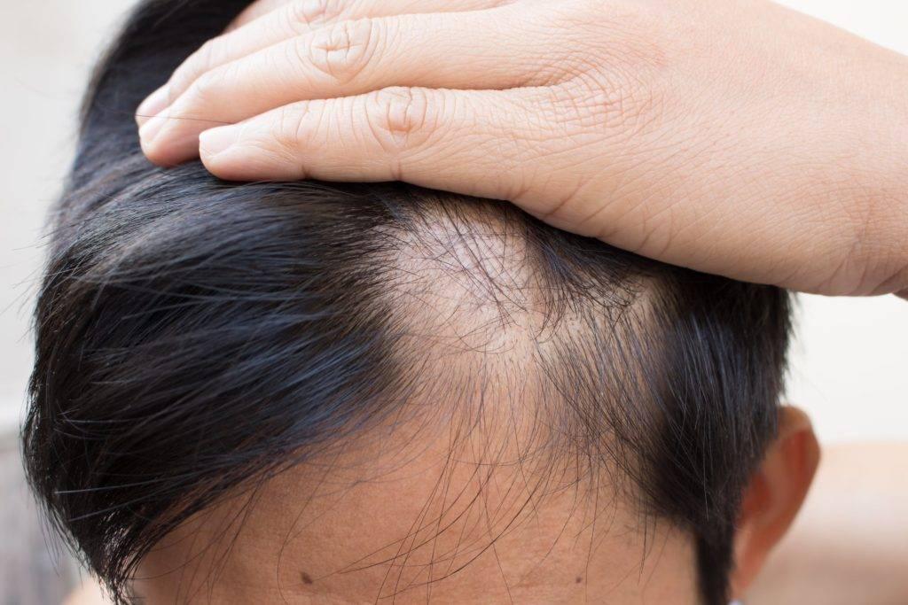 Подробно о лечении очаговой алопеции у женщин