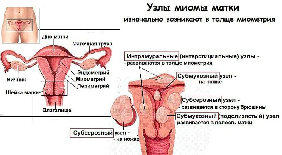 Боли при миоме матки при климаксе