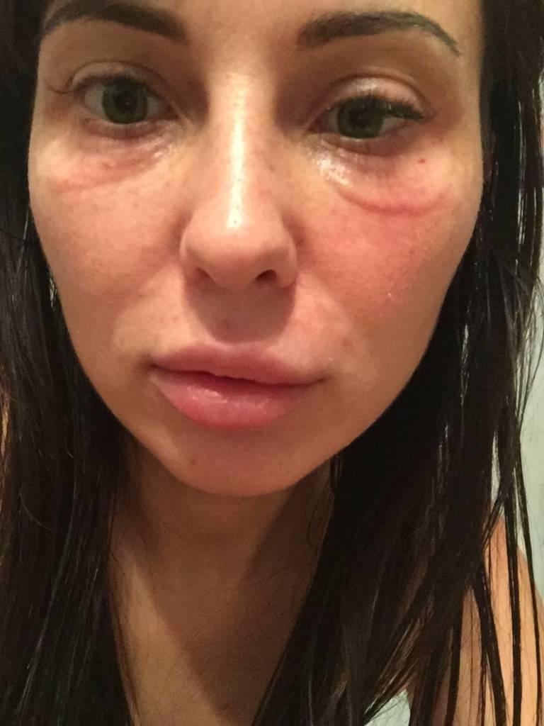 Аллергия на «ботокс»: причины, симптомы, лечение