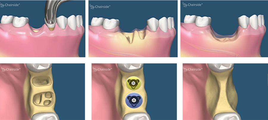 Экзостоз (остеофит) челюсти
