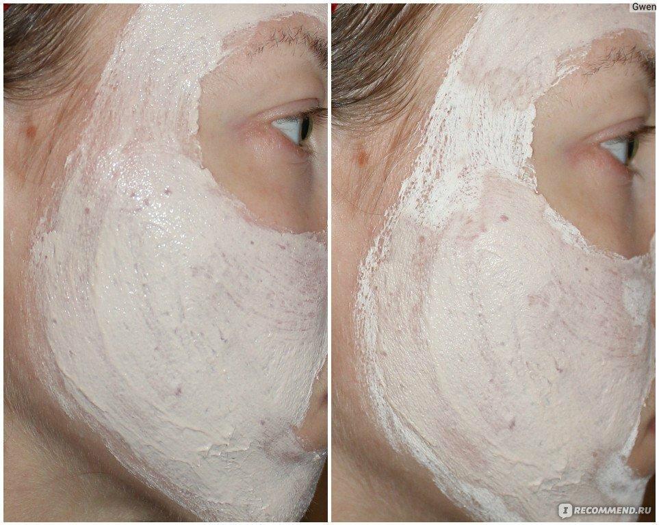 Маски от угрей на лице: применение и приготовление в домашних условиях