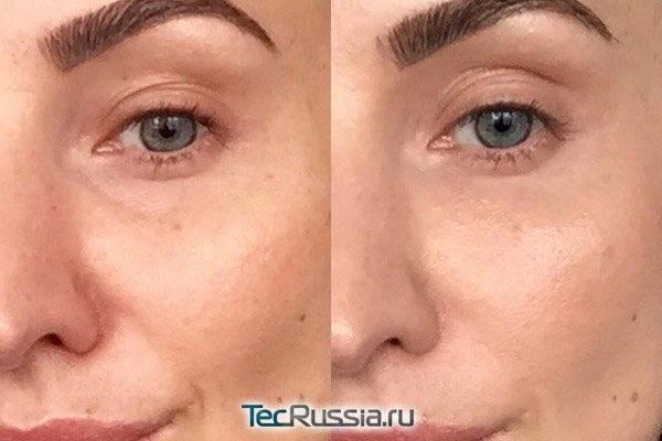 Лучшие средства от морщин вокруг глаз