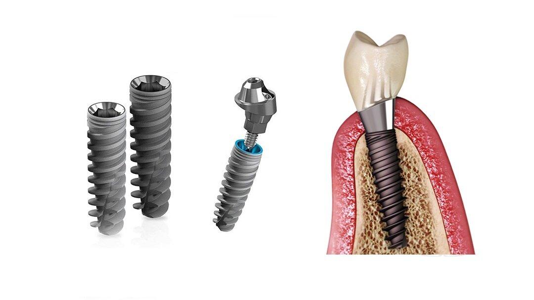 Топ-4 лучших вида имплантов зубов, которые подойдут каждому