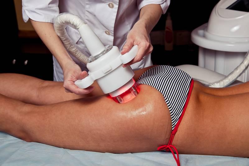Вакуумно-роликовый массаж и его эффективность