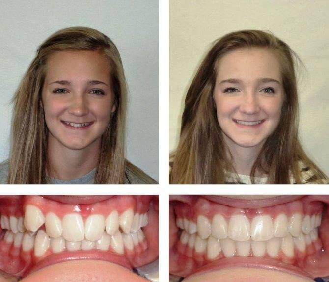 Исправление прикуса брекетами. как происходит, фото до и после, как меняется лицо, цены