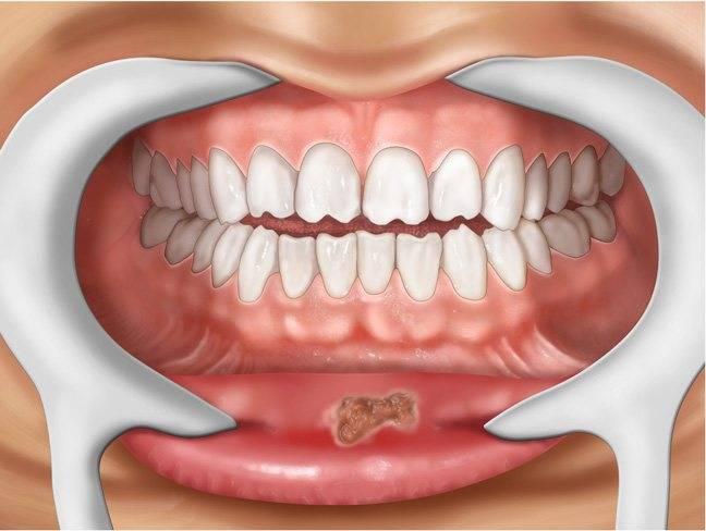 Пузырек во рту на слизистой: причины появления и лечение