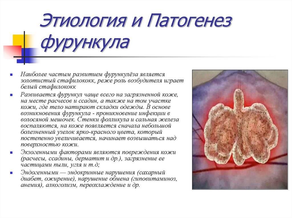 Профилактика и методы лечения фурункула на лице