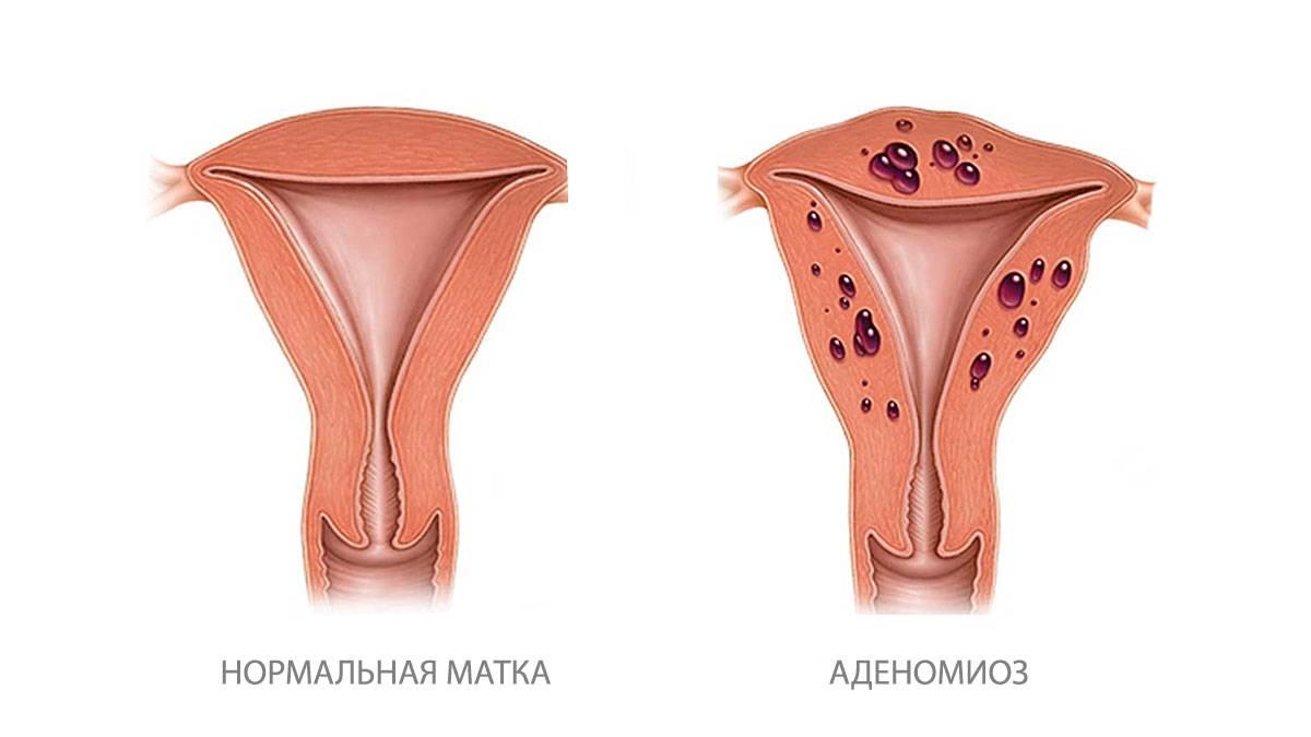 Псевдоэрозия шейки матки: возможные осложнения, когда ее надо лечить