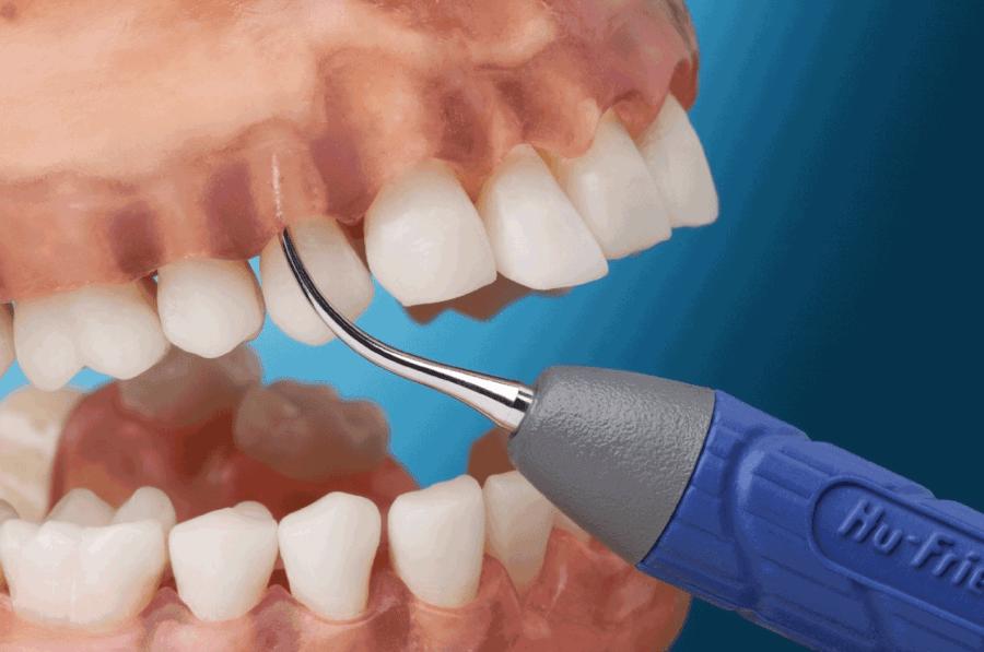 Снятие зубного камня ультразвуком: цены, отзывы