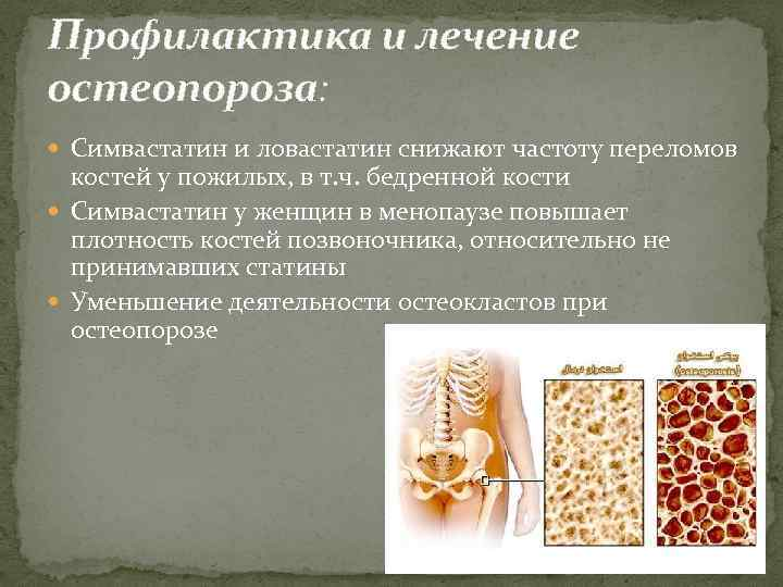 Лечение и профилактика остеопороза при климаксе у женщин