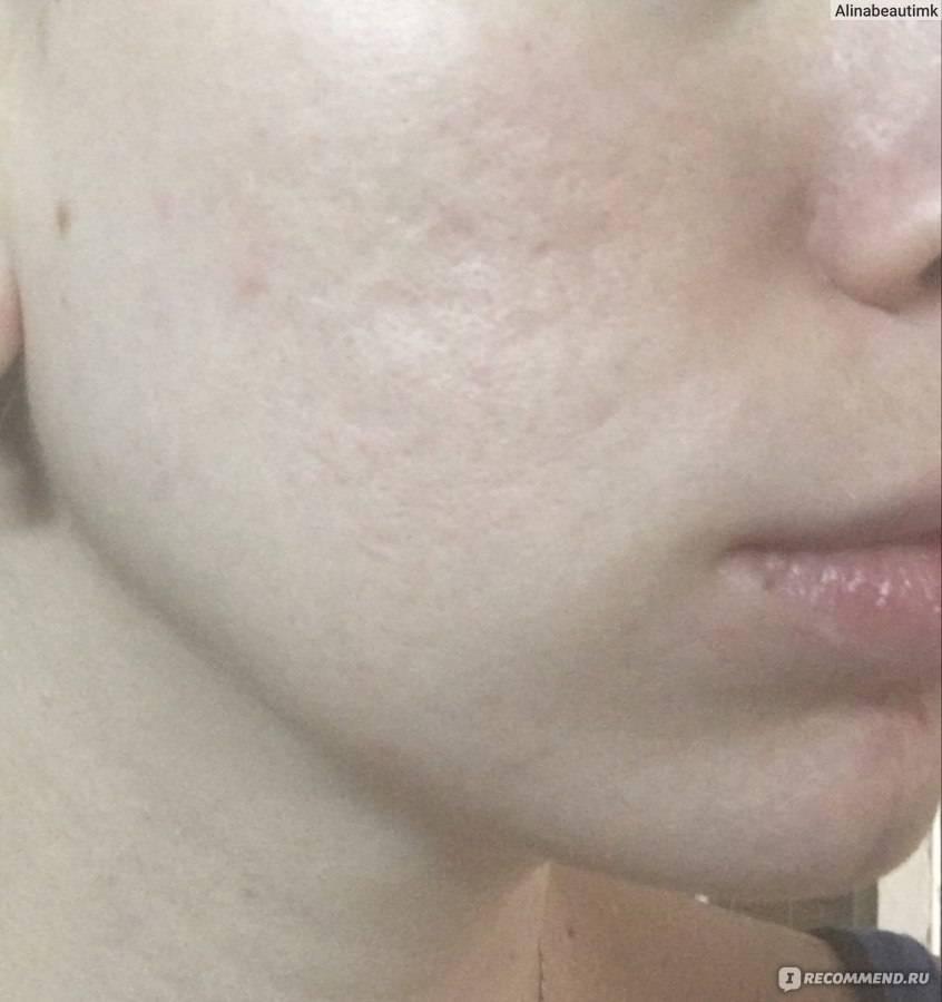 Топ 9 лучших тональных кремов для возрастной кожи