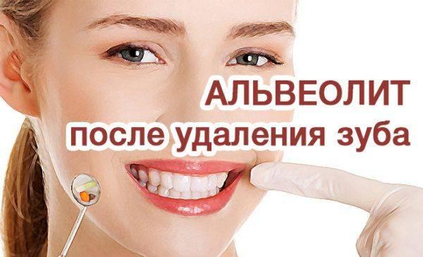 Как проходит удаление зуба мудрости и последующее восстановление