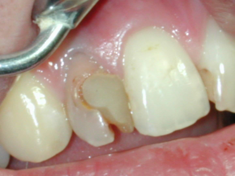Причины гноя после удаления зуба