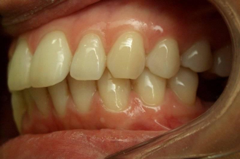 Кюретаж — чистка лунки удаленного зуба и десневых карманов: особенности и тонкости процедуры