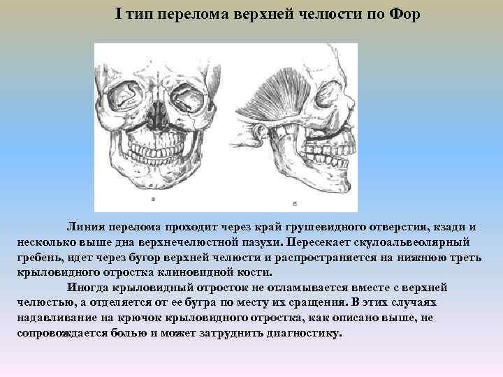 Все о переломе верхней челюсти