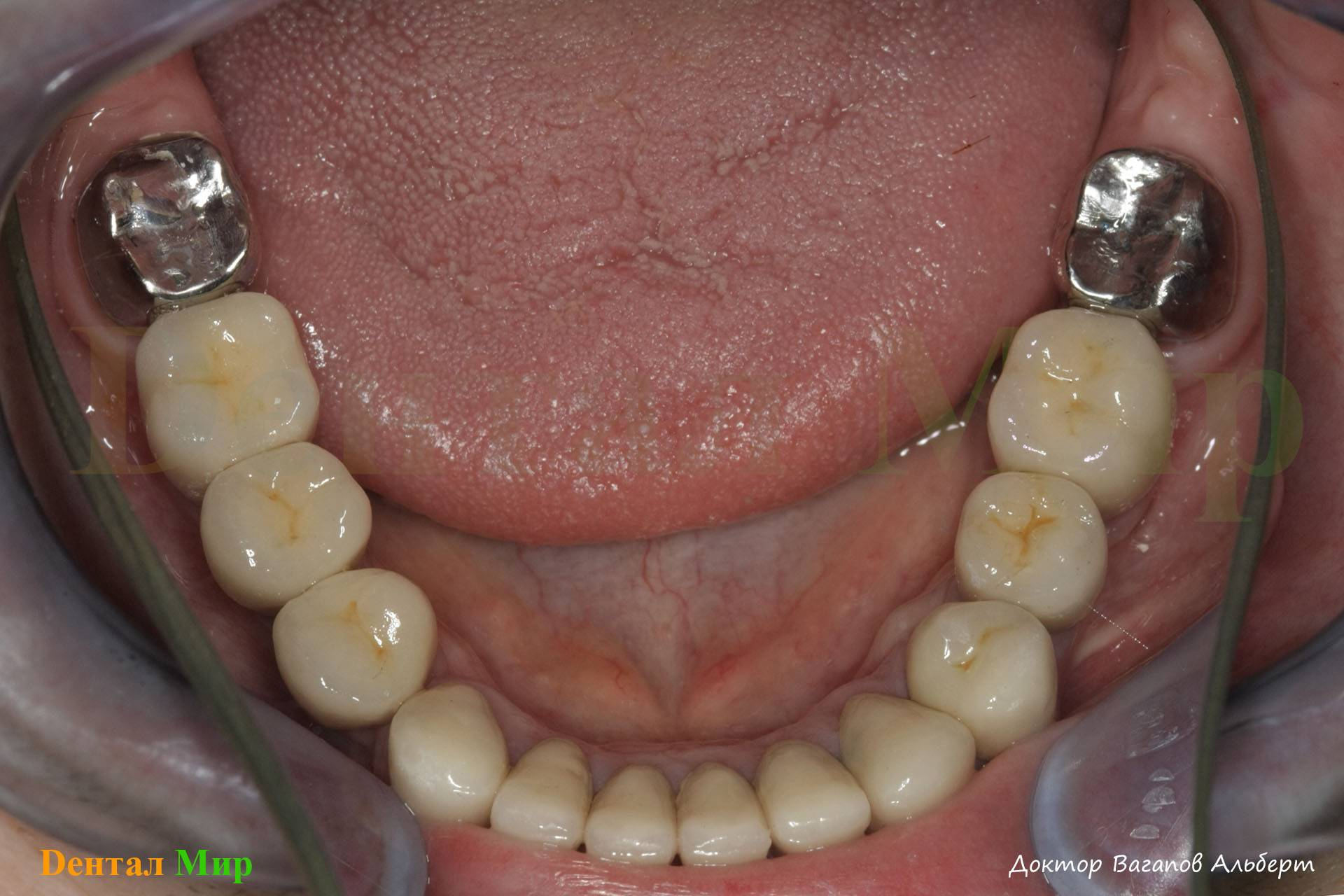 Какой протез поставить на жевательные зубы
