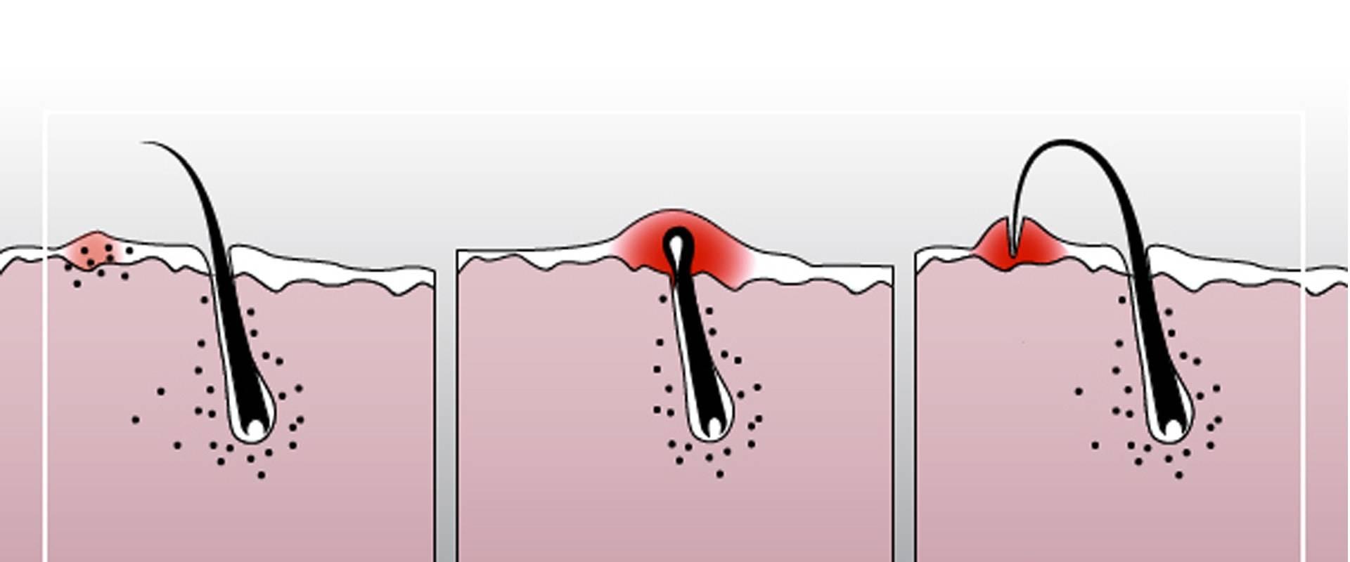 Как убрать пятна после вросших волос