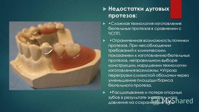 Протезирование на имплантах - балочный протез, инструкция по уходу