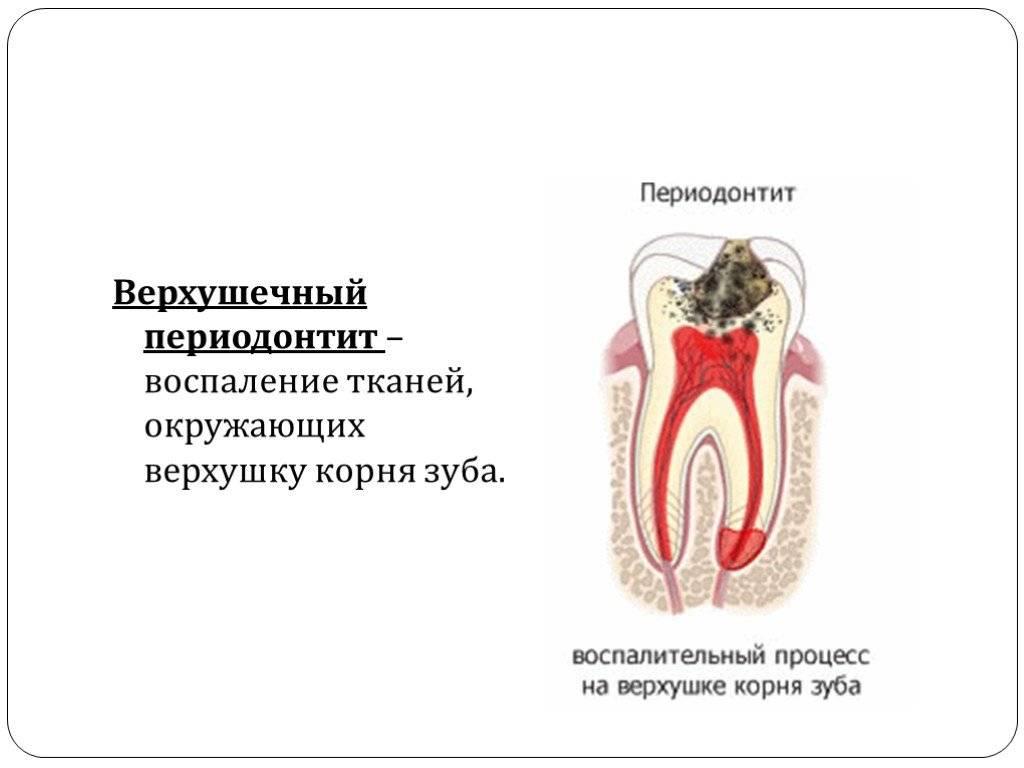 Фиброзный периодонтит: почему развивается и как его лечить
