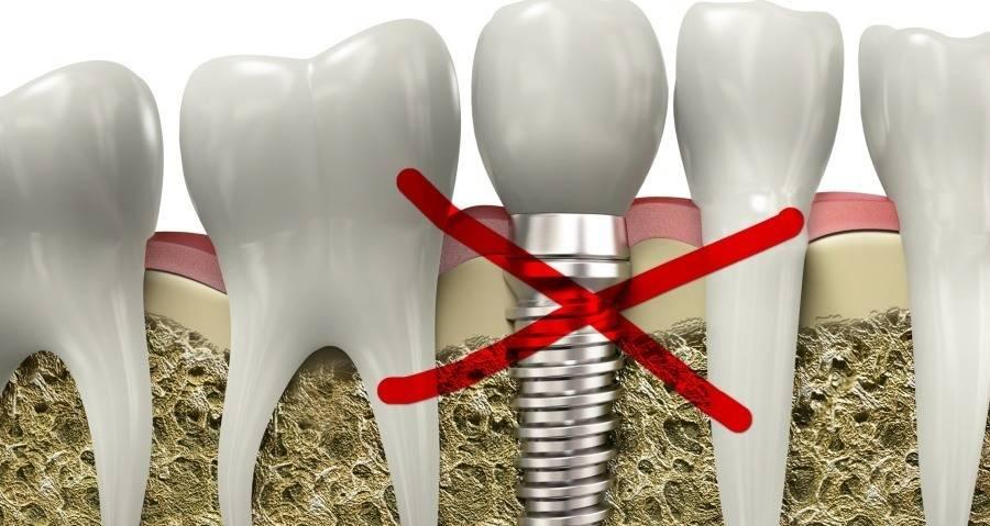 Зубные импланты: основные противопоказания для установки