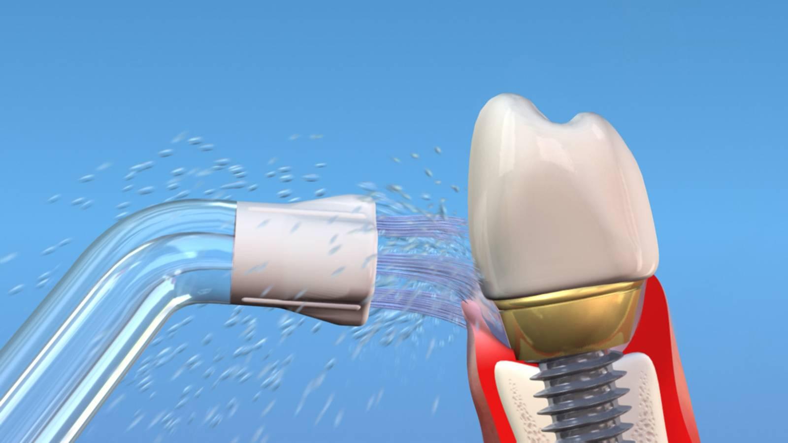 Рекомендации по уходу за имплантами зубов после установки и во время эксплуатации