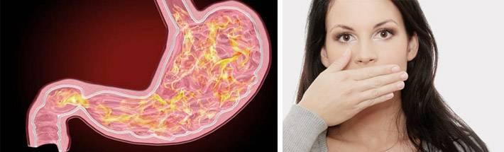 Запах изо рта у ребенка. причины, симптомы, лечение и профилактика