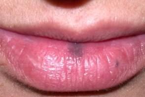 Как избавиться от черных точек на губах
