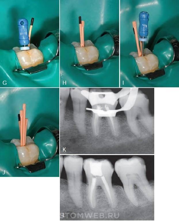 Обтурация корневых каналов зубов — методы, этапы, материалы
