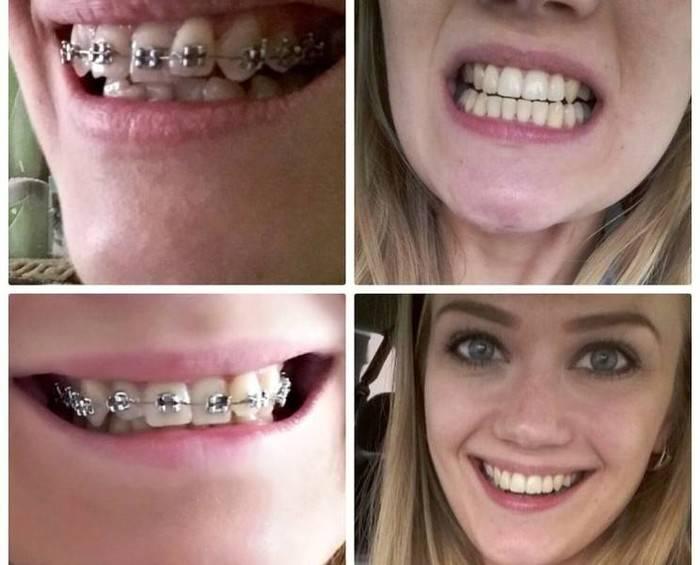 В брекетах шатаются зубы — что делать?