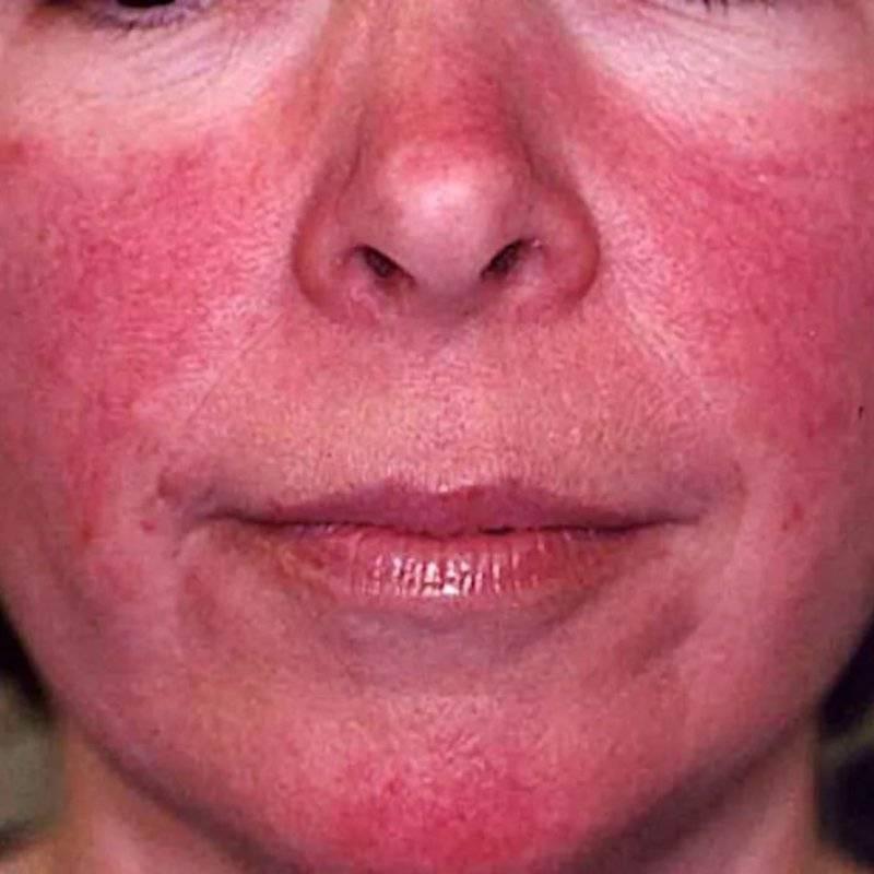 Специфические осложнения в области кончика носа