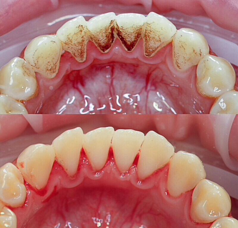 Отбеливание зубов: что нельзя после есть и делать, белая диета, какие продукты кушать, рекомендации, можно ли пить пиво, курить