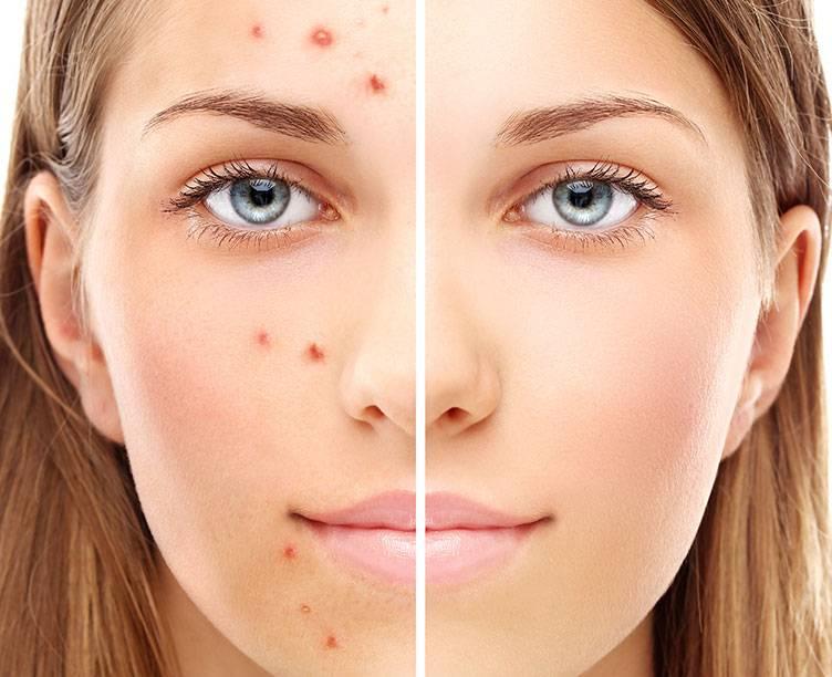 Уход за жирной кожей лица: что вы делали неправильно