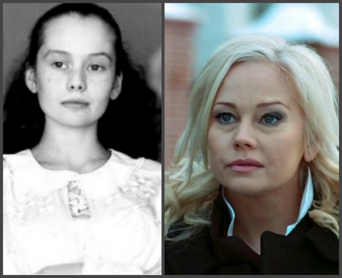 Елена воробей. фото до и после пластики, биография, рост, вес, возраст, операции по коррекции внешности артистки