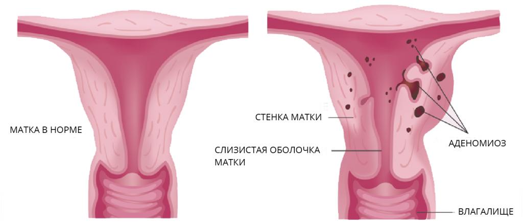 Почему утолщается стенка матки. почему происходит локальное утолщение миометрия